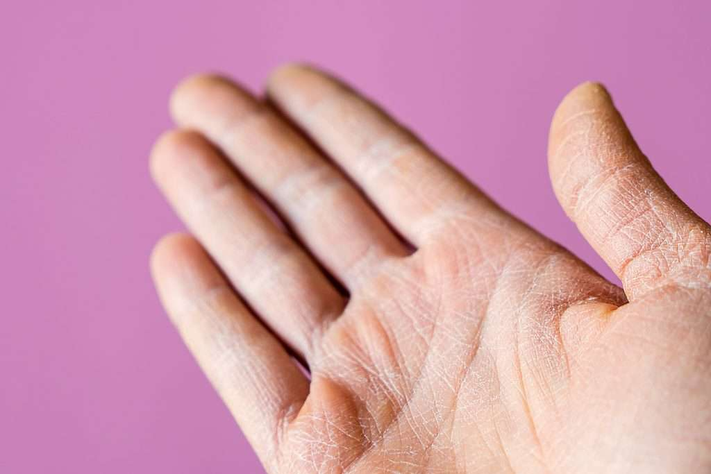 dry hands from traditional skin alcohol sanitizers